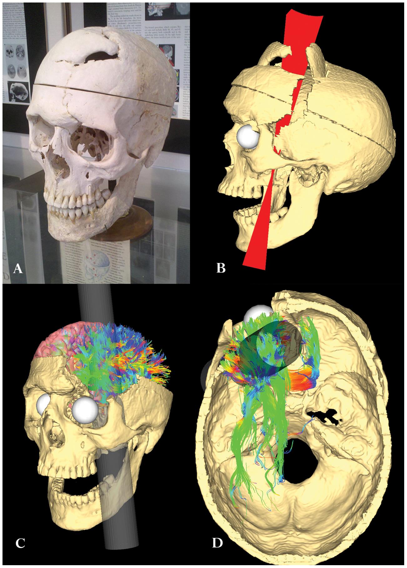 Травма Финеаса Гейджа, воссозданная спомощью компьютерного моделирования, 2012 год.