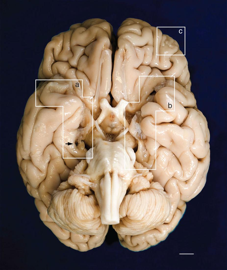 После смерти мозг Генри Молисона извлекли, разрезали натонкие слои исоздали цифровую модель, которая доступна всем желающим винтернете.