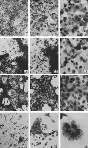 Полиовирус (возбудитель полиомиелита) разрушает клетки линии HeLa. Снимок из исследования 1953 года.