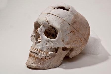 Сейчас череп Финеаса Гейджа хранится вАнатомическом музее Уоррена (Warren Anatomical Museum) при Гарвардской медицинской школе.