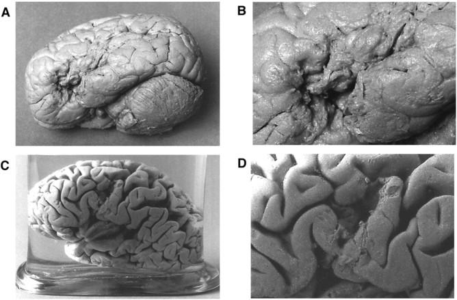 Мозги знаменитых пациентов Поля Брока: Тана (A,B) иЛелонга (C,D).