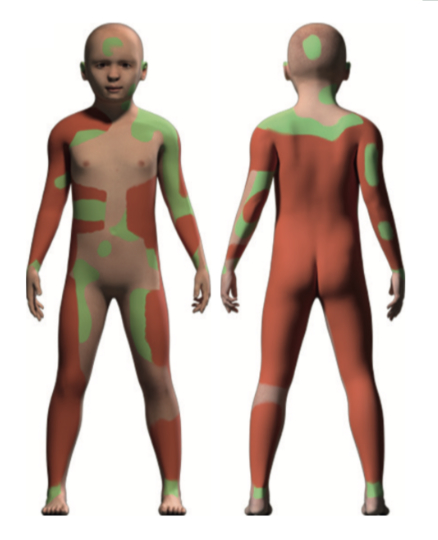 Рис. 7. Картина поражения кожи пациента до лечения. Красные зоны— отслоение эпидермиса, зелёные— вспучивание. Новый кожный материал был пересажен ина красные, ина зелёные участки