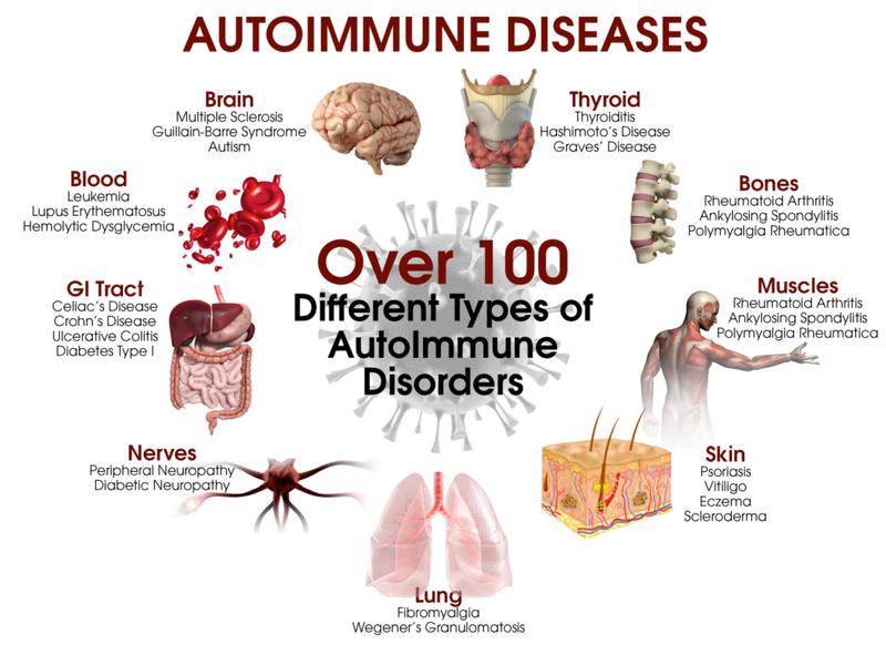 Насегодняшний день каутоиммунным относят более ста заболеваний различных локализаций.
