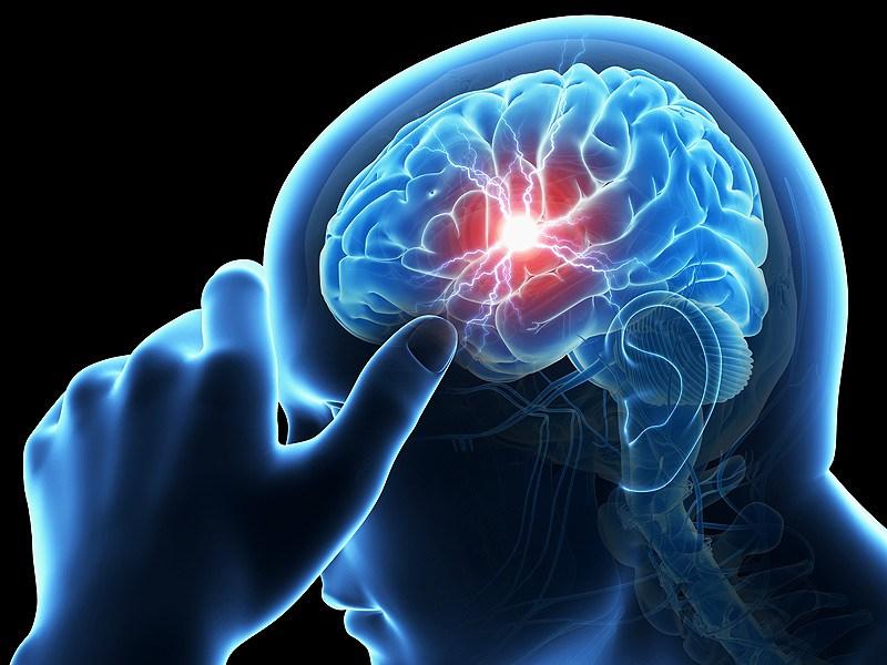 Инсульт приводит кстойким (иногда необратимым) нарушениям двигательных, речевых икогнитивных функций. Развивается инсульт как следствие сосудистых патологий.