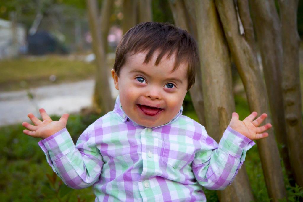 Синдром Дауна— распространённая форма геномной патологии. Как правило, убольных вгеноме присутствует «лишняя» 47-ая хромосома.