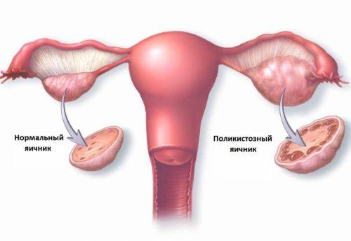 Хотя синдром поликистозных яичников исчитается одной из самых распространённых гинекологических патологий, причины его возникновения до сих пор были невполне ясны.