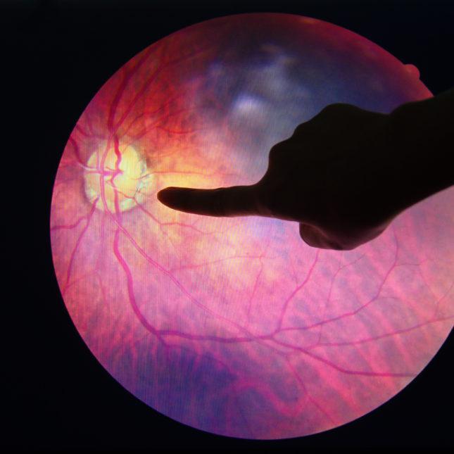 Рис. 9. Изображение сетчатки глаза, используемое для диагностики диабетической ретинопатии.