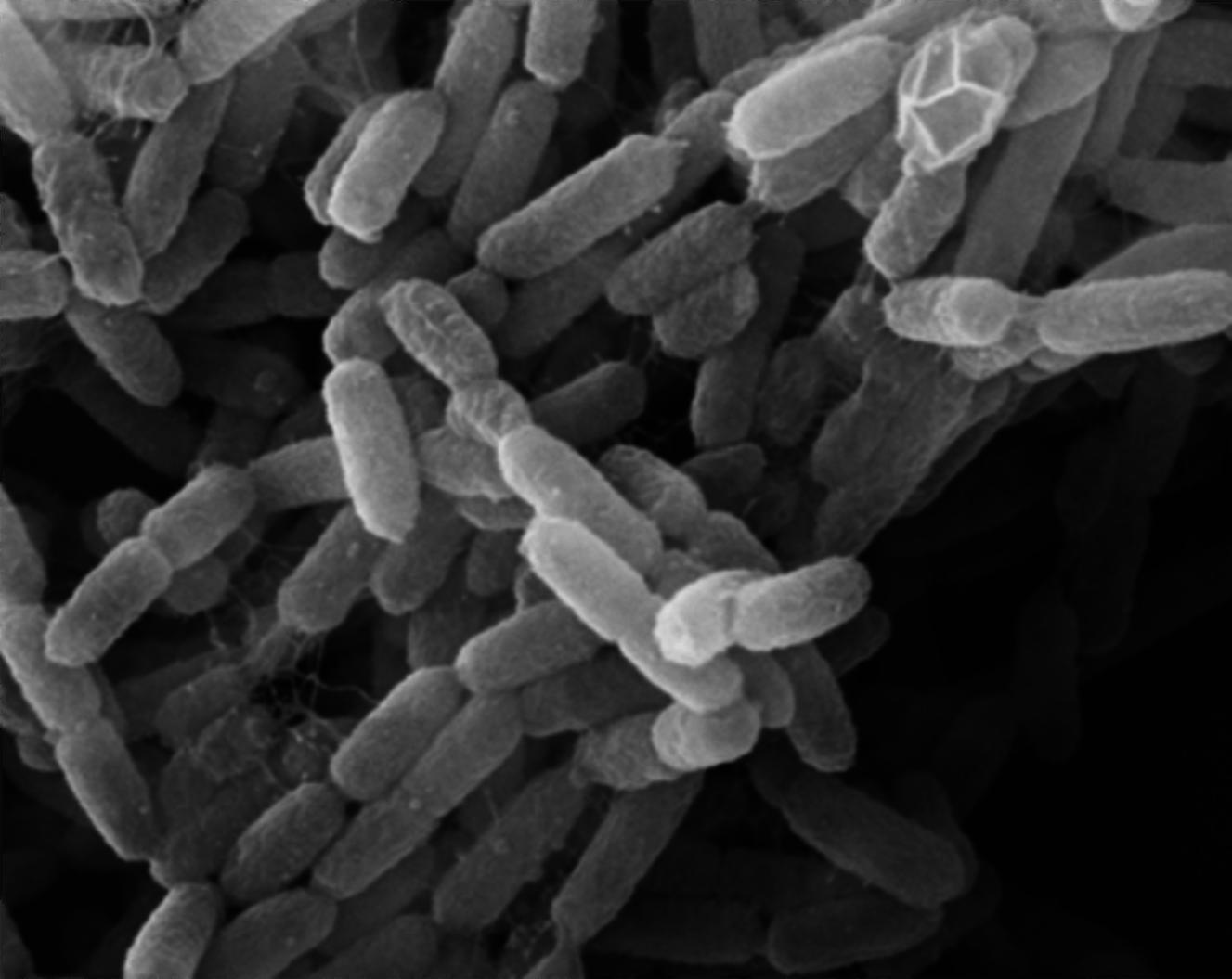 Бактерия <i>Yersinia pestis</i>, возбудитель чумы. Снимок сделан спомощью сканирующего электронного микроскопа.