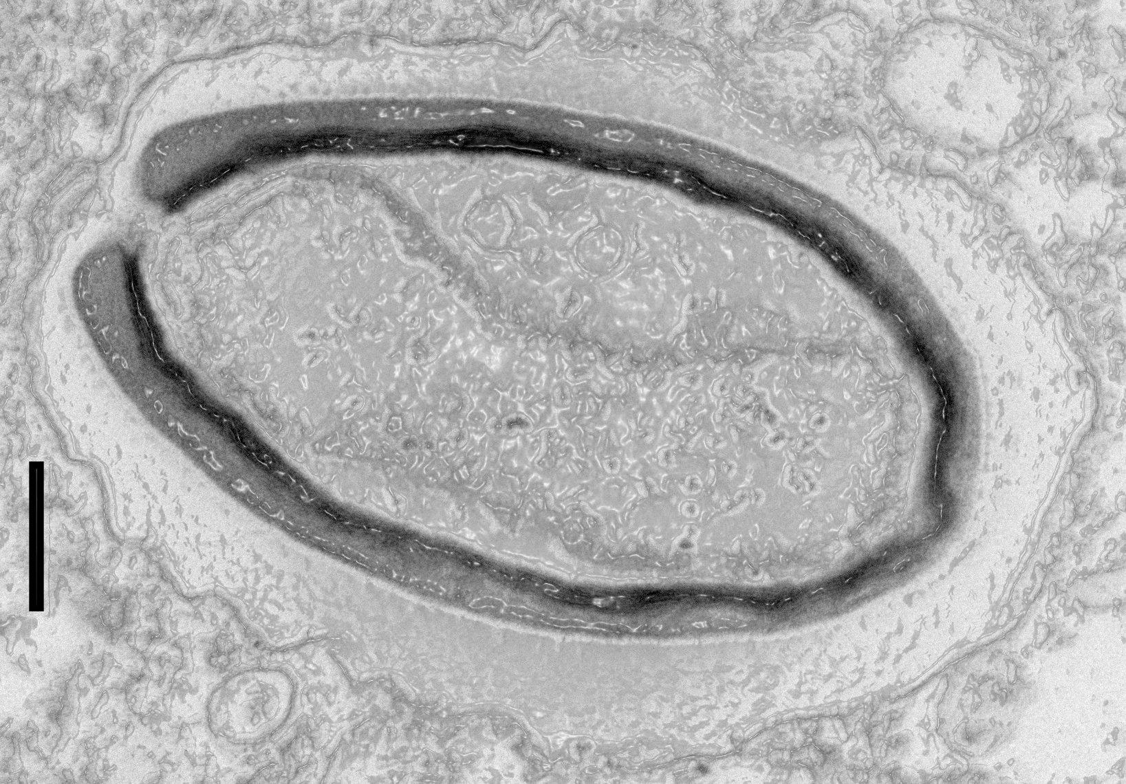 <i>Pandoravirus quercus</i>, обнаруженный исследователями вМарселе. Масштабная линейка слева— 100 нанометров.