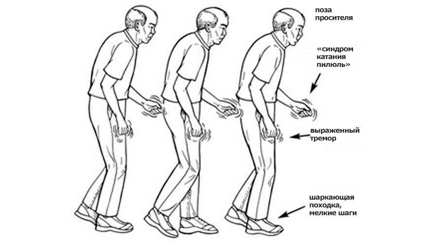 Типичные симптомы болезни Паркинсона.