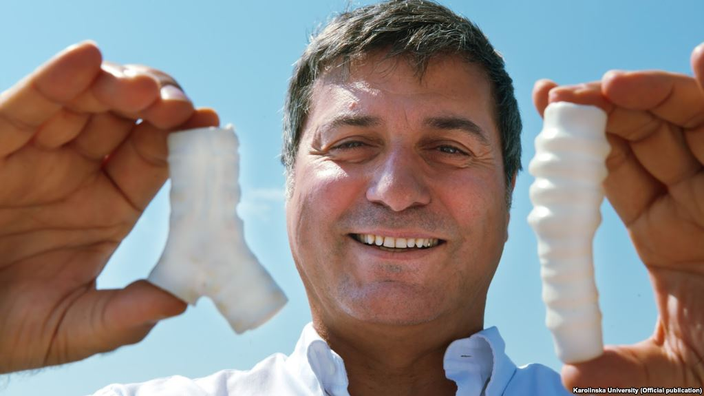 Торакальный хирург Паоло Маккиарини (Paolo Macchiarini) скаркасами искусственной трахеи.