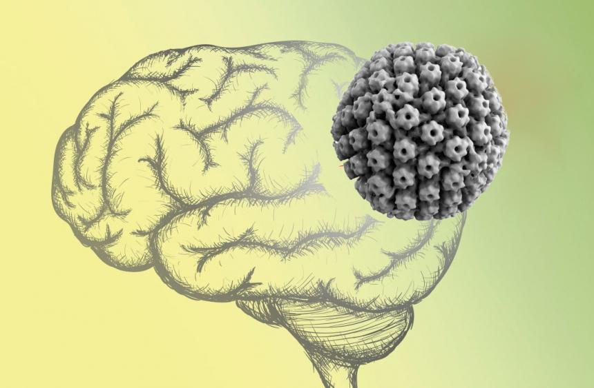 Болезнь Альцгеймера чаще возникает улюдей, заражённых вирусом герпеса.