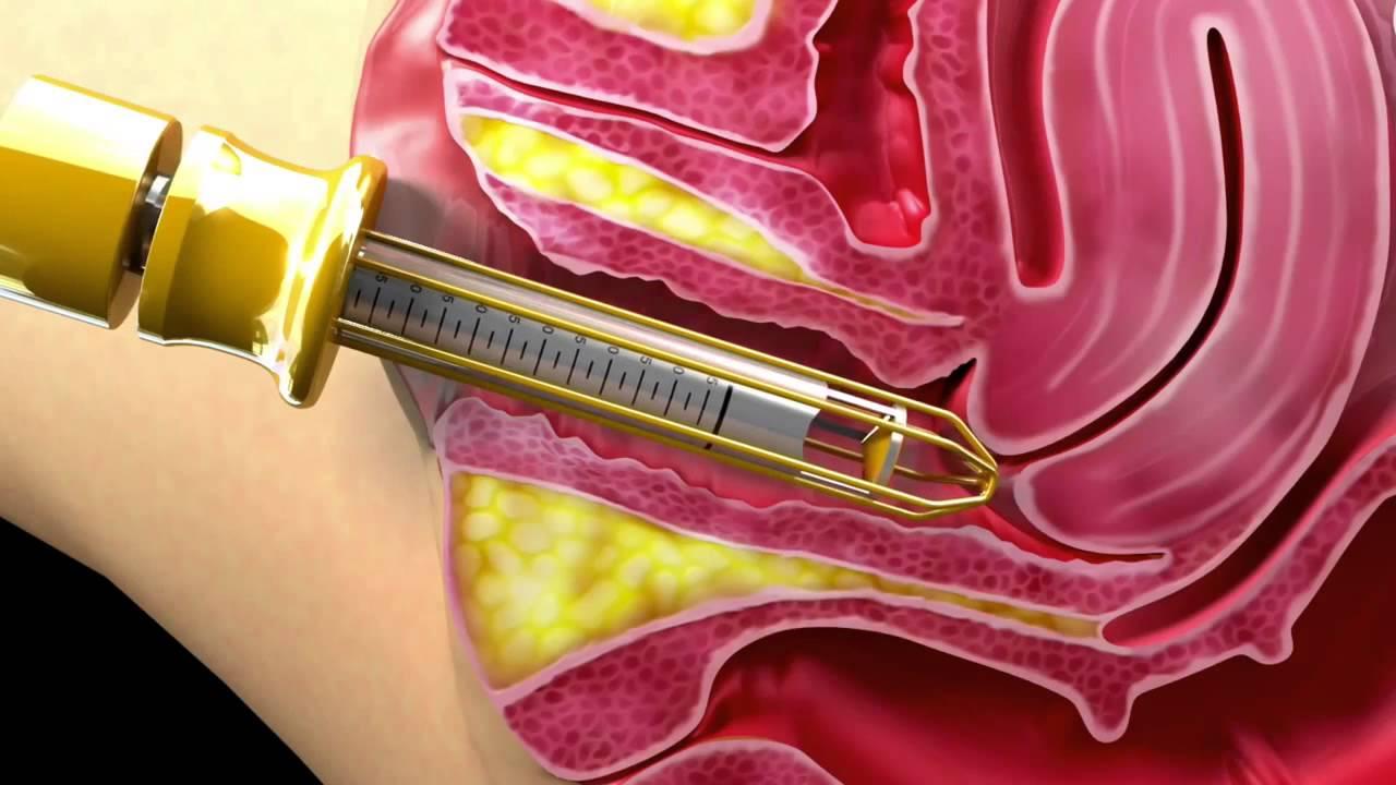 Так процедура «обновления» вагины выглядит изнутри, точнее, сбоку.