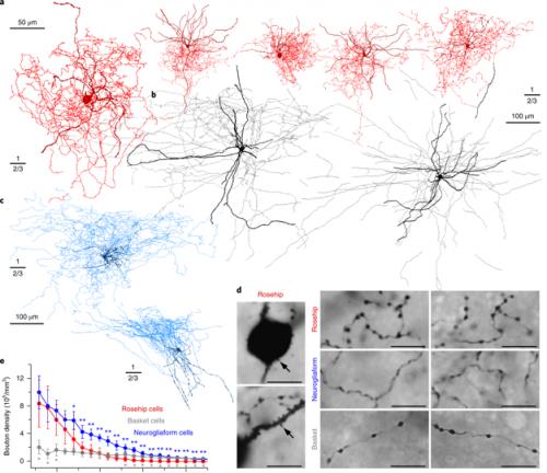 «Шиповниковые нейроны» под микроскопом.