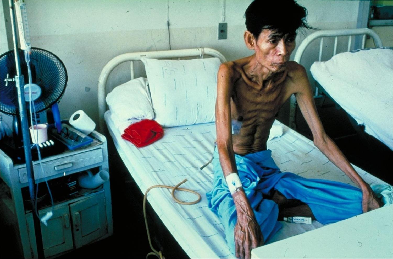 Туберкулёз— одна из основных причин смерти вразвивающихся странах. Но жители Европы иСеверной Америки тоже страдают от этой инфекции.