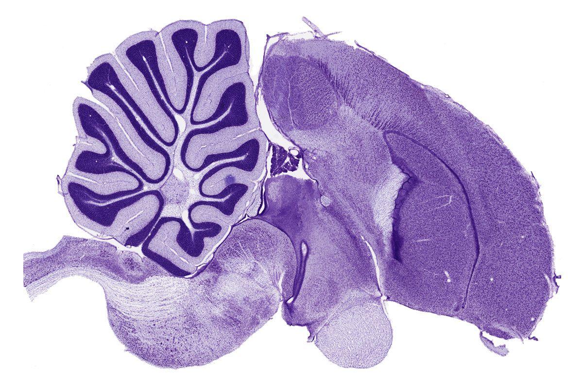Мозг зебровой амадины вразрезе.
