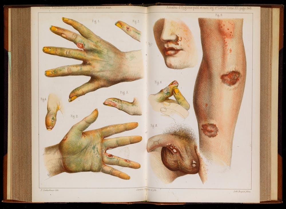 Последствия использования зелёного мышьяка (из книги 1859 года)