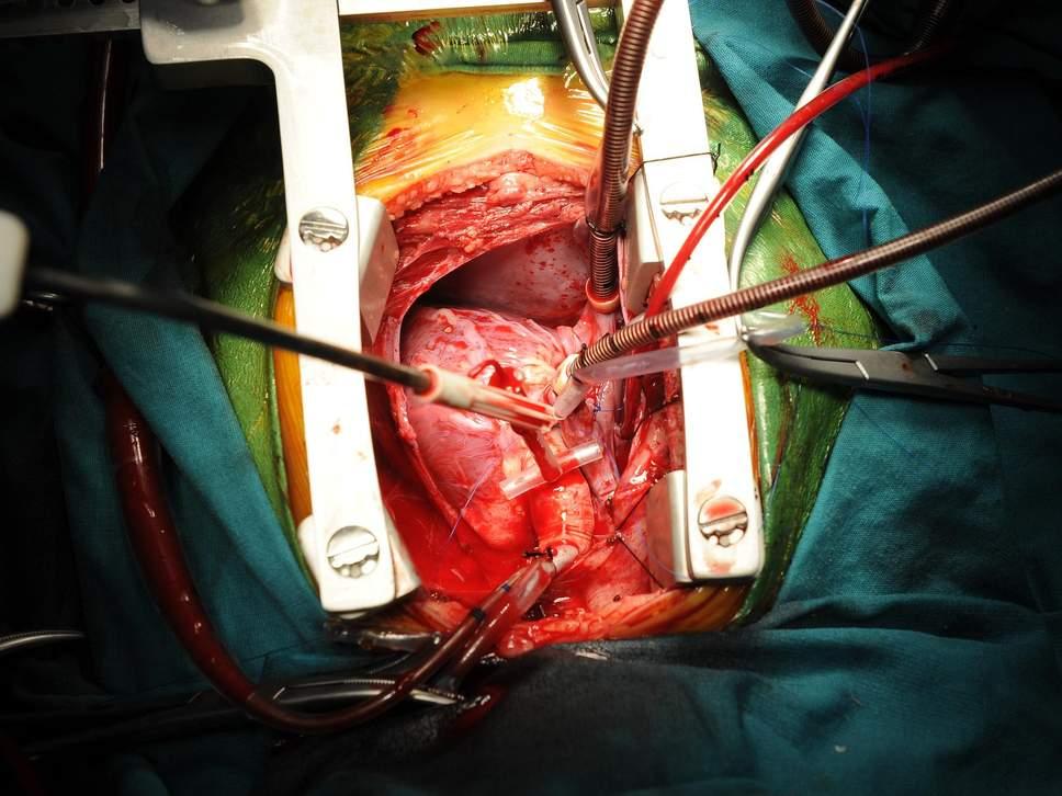 Четыре реципиента органов «заразились» от донора раком
