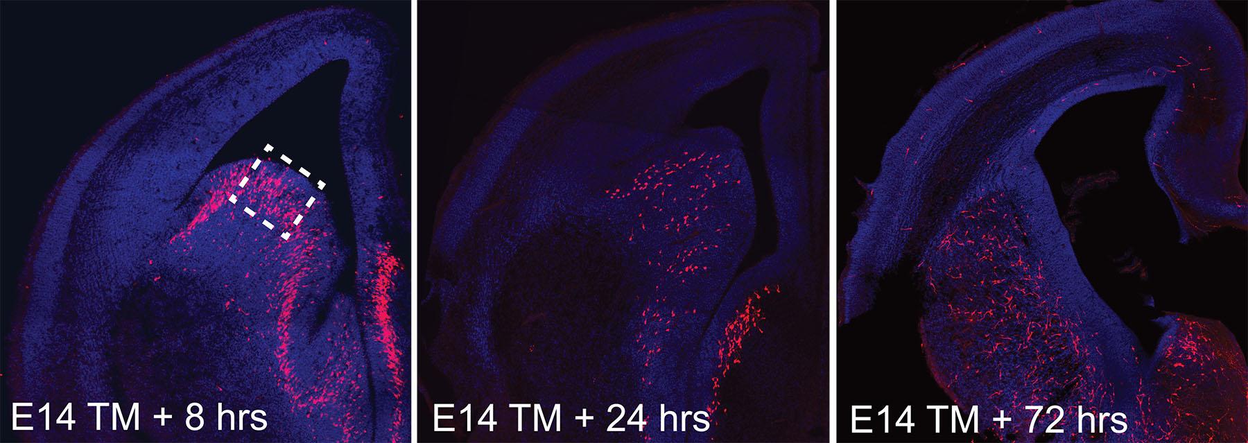 Эти изображения получены на14, 15 и17 день развития эмбриона. Наних видно, как формируется матричная часть полосатого тела. Видно, как подсвеченные красным нейроны постепенно мигрируют вцентр