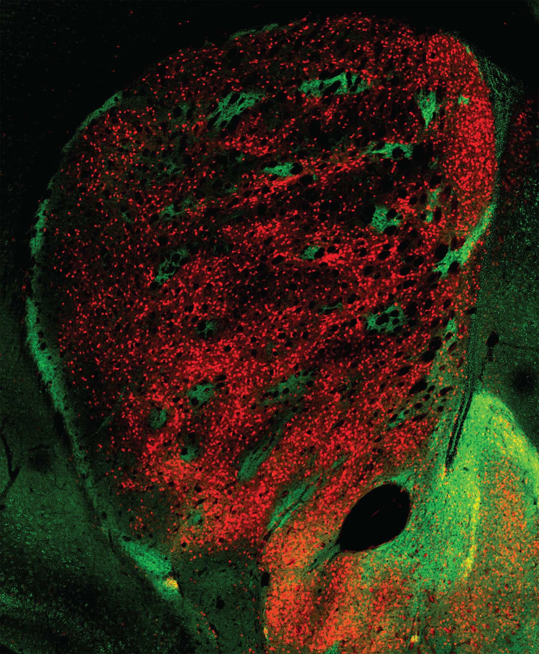 Стриосомы (зелёные) иматрица (красная)
