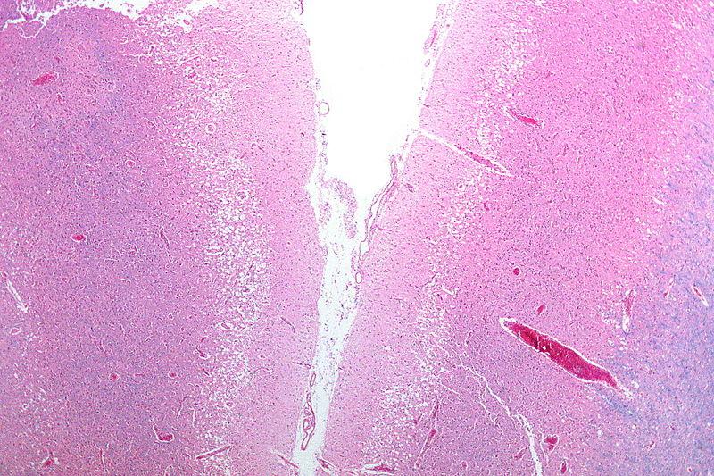 Некроз тканей головного мозга— результат перенесённого инсульта.