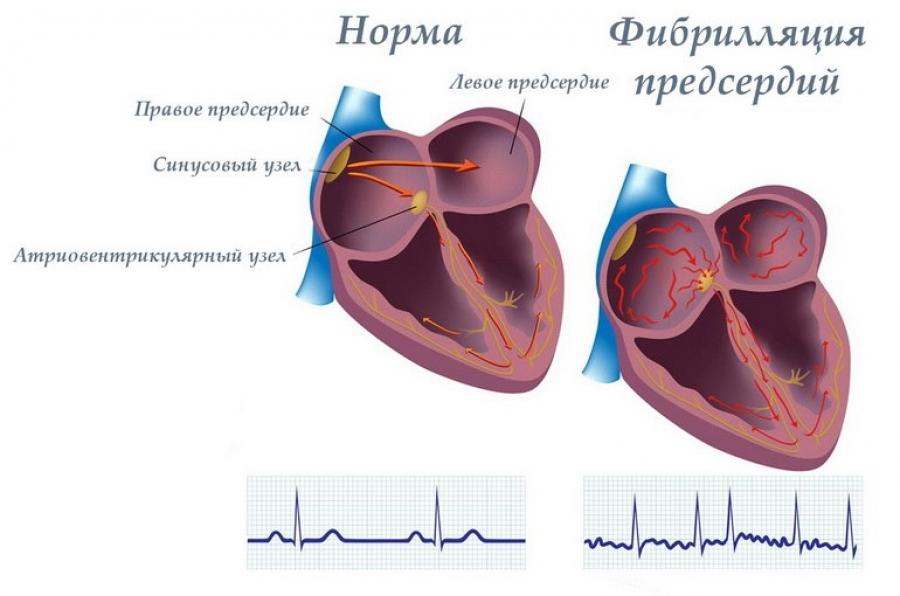 Нормальная работа сердца (слева) ифибрилляция предсердий.