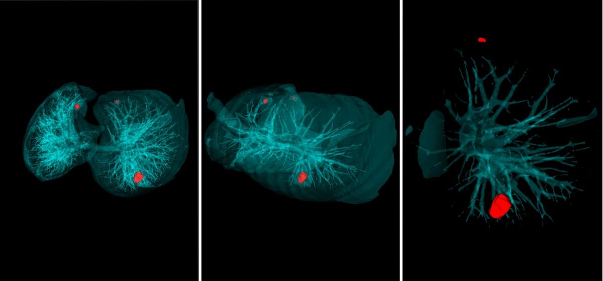 Система Doctor AIzimov распознаёт новообразования наКТ-снимках лёгких.