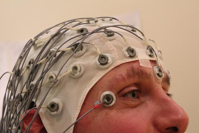 Электроэнцефалограмма— неинвазивный метод исследования