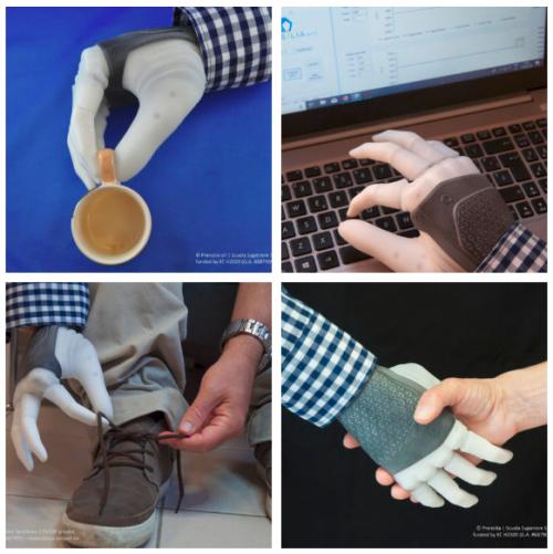 Чувствительный протез руки.