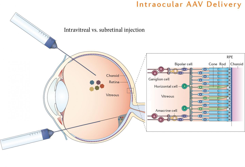 Вирус вводится непосредственно встекловидную оболочку глаза для доставки генов сбольшей точностью.