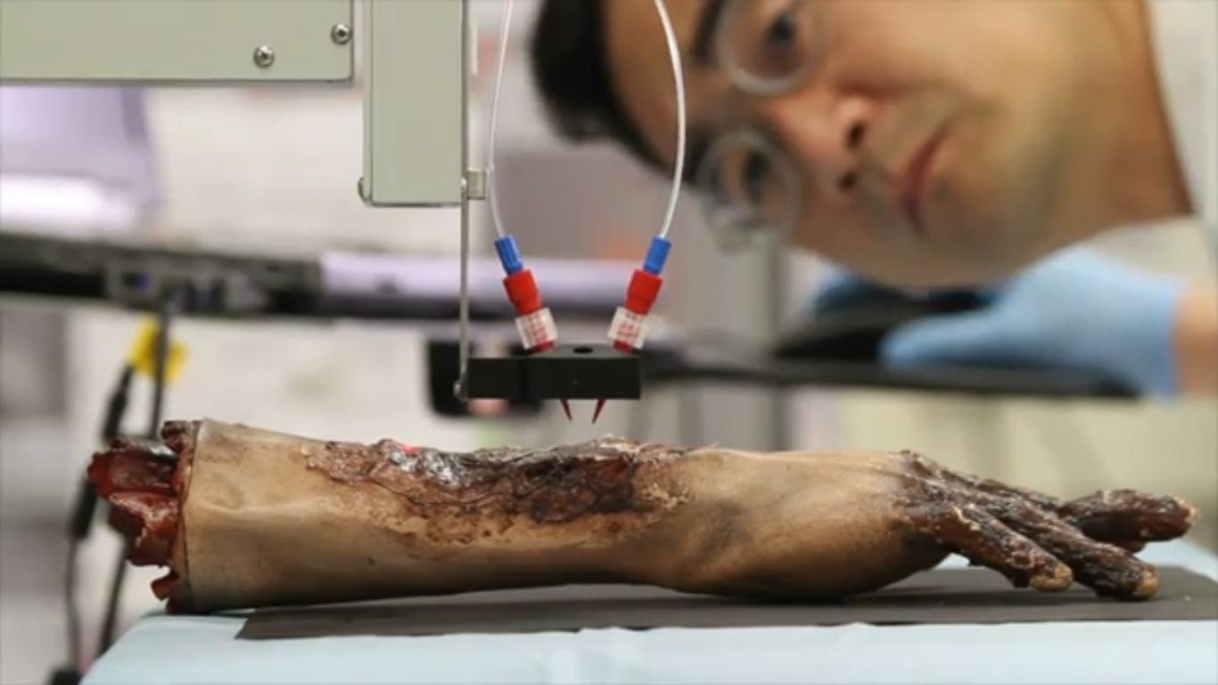 Опытный образец биопринтера кожи.