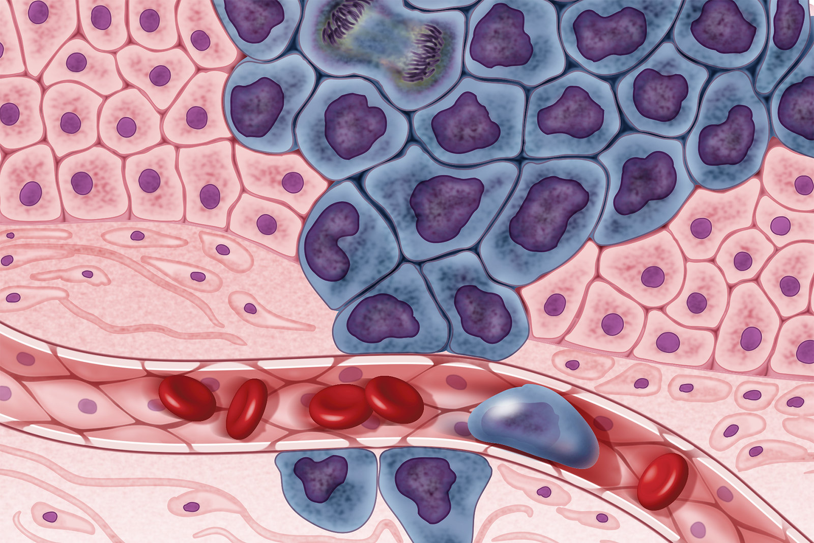 Раковые клетки рассеиваются по организму имогут давать метастазы.