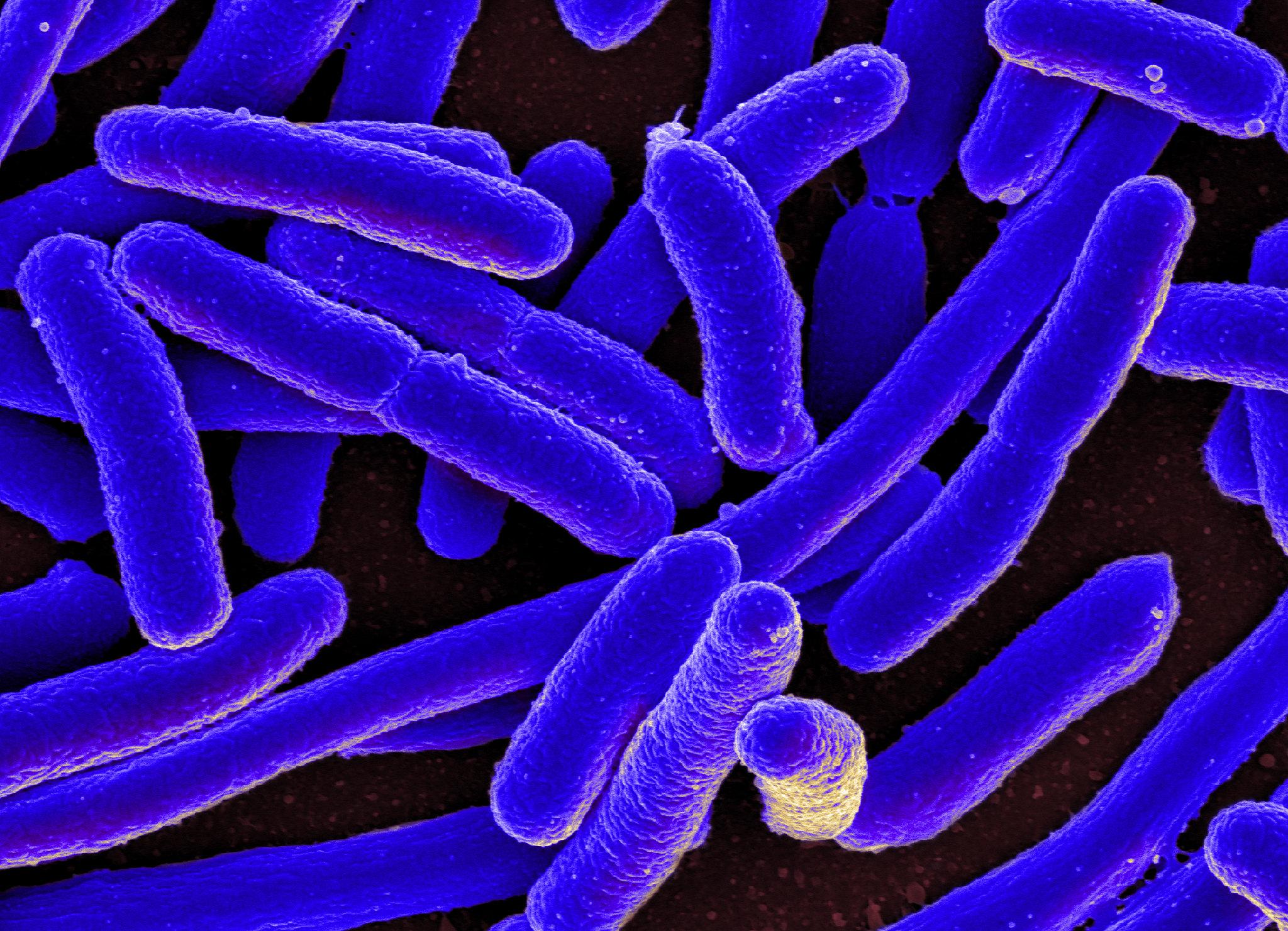 Электронная микрография Escherichia coli