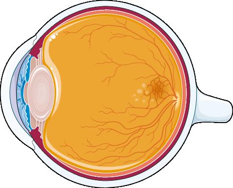 При макулодистрофии поражается сетчатка глаза.