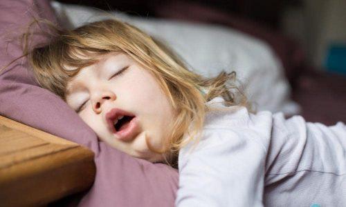 Так может выглядеть ребенок, страдающий от симптома задержки дыхания во сне, который может сопровождать аденоиды.