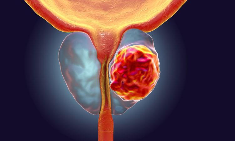 """Новый способ лечения рака предстательной железы работает по принципу """"найти иуничтожить""""."""