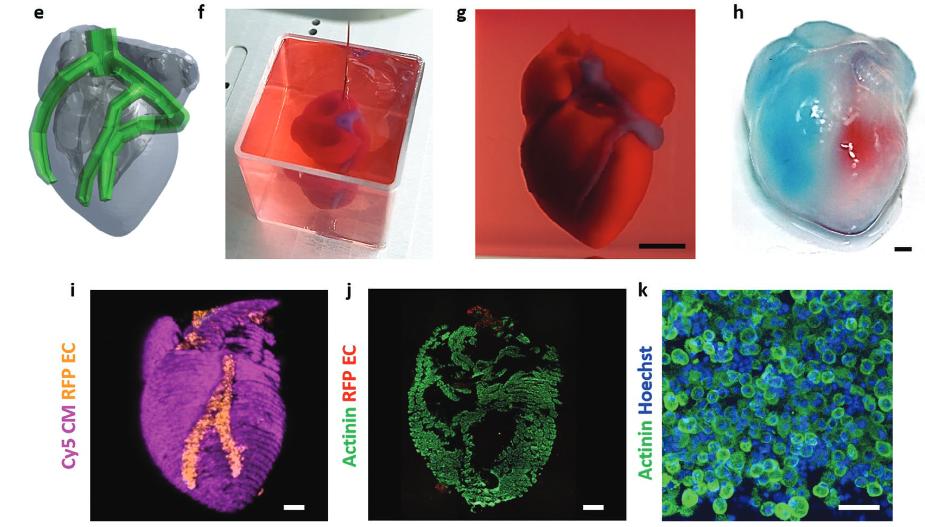 Рисунок 9. Эксперименты по получению сердца, напечатанного на3D-принтере. e) Модель будущего сердца; f, g) напечатанное сердце вванночке; h) сердце после введения голубой икрасной краски вжелудочки для визуализации внутреннего пространства; i) 3D-конфокальное изображение сердца. Кардиомиоциты фиолетовые, эндотелиальные клетки оранжевые; j, k) окрашивание среза сердца наактинин (зелёный), маркер кардиомиоцитов
