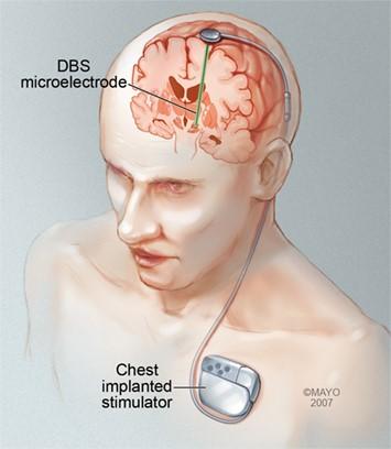 Рисунок 2. Схема установки устройства глубокой стимуляции мозга (DBS microelectrode) истимулятора (Chest implanted stimulator)