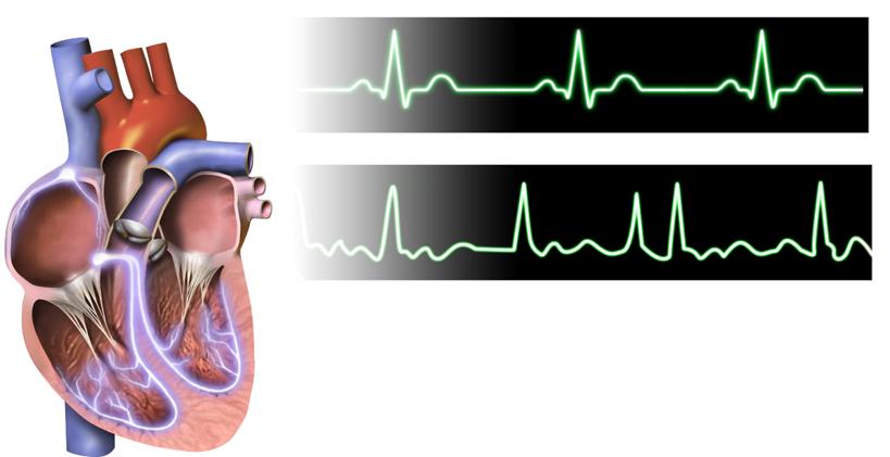 Рисунок 7. При фибрилляции предсердий сердце сокращается неравномерно, повышаются риски сердечной недостаточности, инсульта, деменции