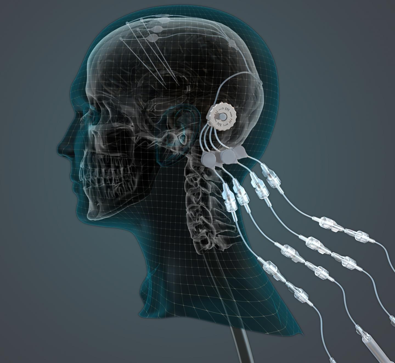 Рисунок 3. Схема установки мозгового импланта для доставки GDNF