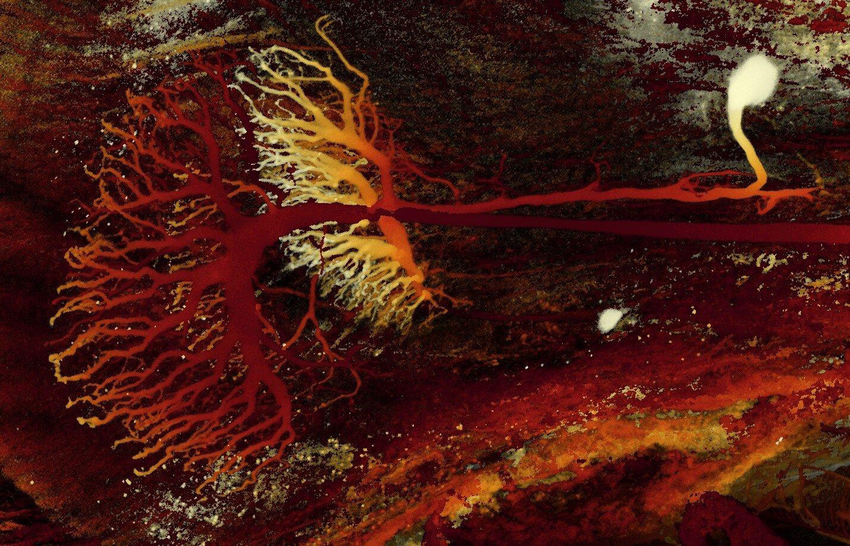 Изображения, полученные спомощью мощного микроскопа, зафиксировали дендритное древо нервной клетки, по которому она сообщается сигналами состальной частью мозга.