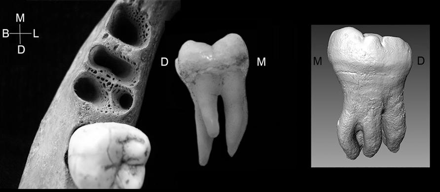 Слева— альвеола от трёхкорневого первого моляра внижней челюсти. Вцентре— трёхкорневой первый моляр. Справа— второй моляр нижней челюсти денисовца стремя корнями.