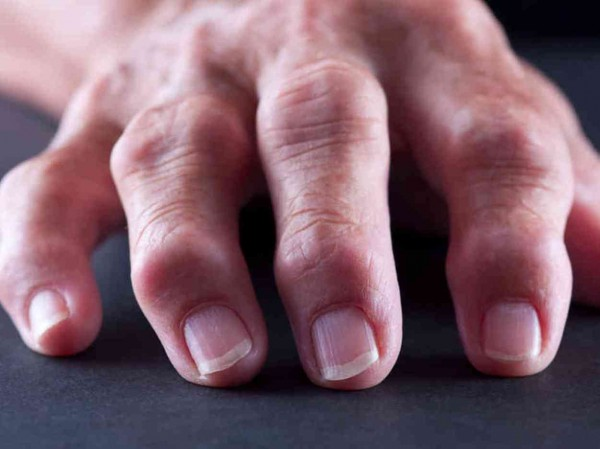 Барицитиниб может помочь пациентам сревматоидным артритом