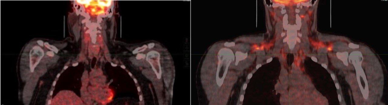Бурый (коричневый) жир активируется при низкой температуре тела. Слева: коричневый жир неактивирован. Справа: Холод активирует бурый жир вплечах ишее, как показано оранжевым цветом. Изображение: Labros Sidossis/Rutgers University.