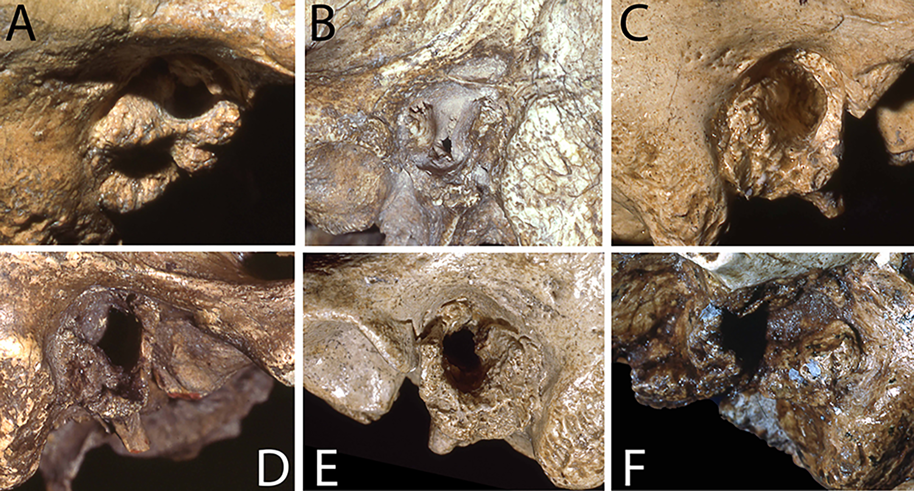 Примеры экзостоза слухового прохода унеандертальцев.