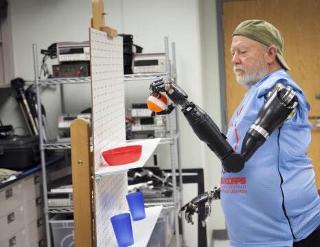 Американцу Ле Бо (Les Baugh) в2014 году был встроен такой протез руки.