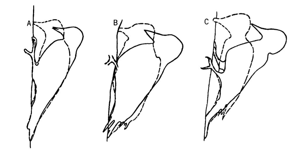 Последовательные движения при долблении дятлов разных групп, слева направо: дятел-сосун Sphyrapicus varius (земляной дятел, мало долбящий), волосатый дятел Dendrocopos villosus (долбящий дятел со средней специализацией) итёмноспинный трёхпалый дятел (наиболее специализированный долбильщик). По: Spring, 1965.
