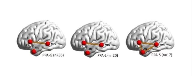 На рисунке отмечены области мозга, связанные спродуцированием речи, исвязи между ними