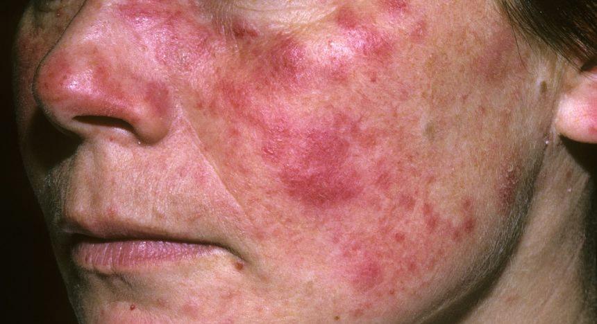 Аутоиммунные заболевания ипрепараты для их лечения