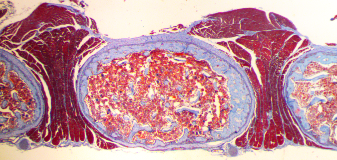 Красный костный мозг человека сразвивающимися кровяными тельцами.